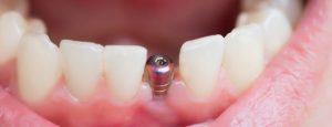 Implant dentaire Lyon : pourquoi faire un implant dentaire ?