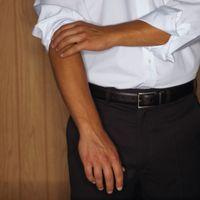 Les membres touchés par la névralgie cervico-brachiale